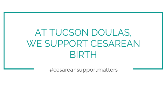 cesarean birth in tucson